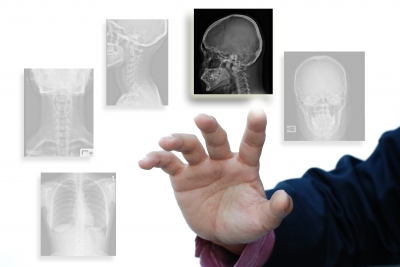 hirse gegen arthrose